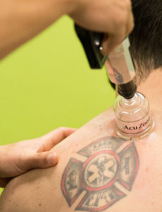 Cupping Therapy in Seattle & Portland